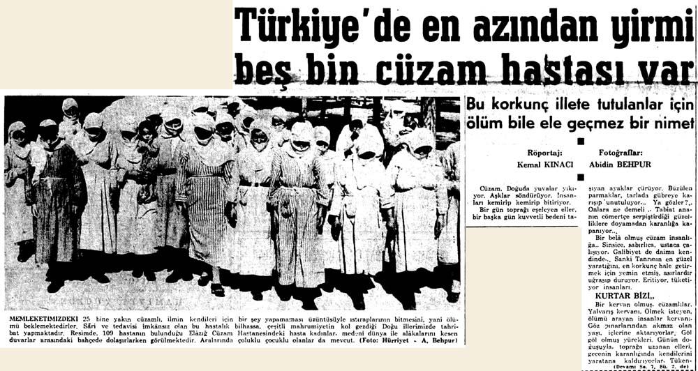 Türkiye'de en azından yirmi beş bin cüzam hastası var