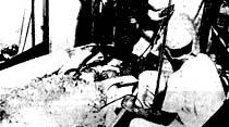 Bir ölüden alınan yedek parça ilk defa olarak kalbe takıldı