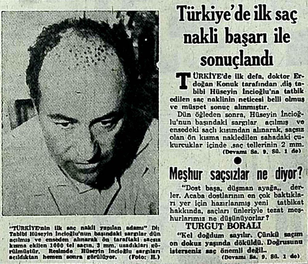 Türkiye'de ilk saç nakli başarı ile sonuçlandı