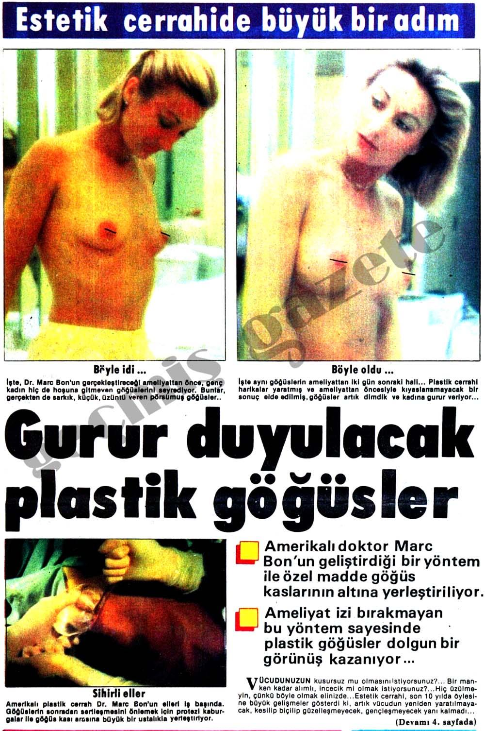 Plastik göğüsler