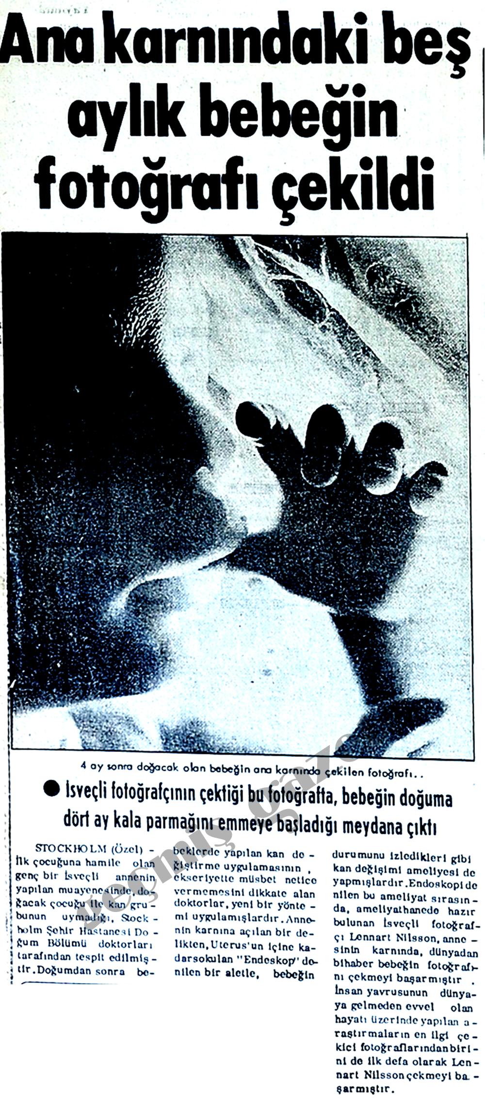Ana karnındaki beş aylık bebeğin fotoğrafı çekildi