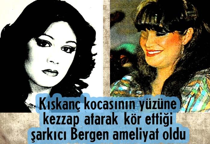 Kıskanç kocasının yüzüne kezzap atarak kör ettiği şarkıcı Bergen ameliyat oldu